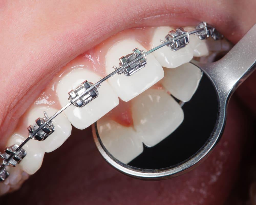 стоматолог ортодонт в Калуге Эстетика